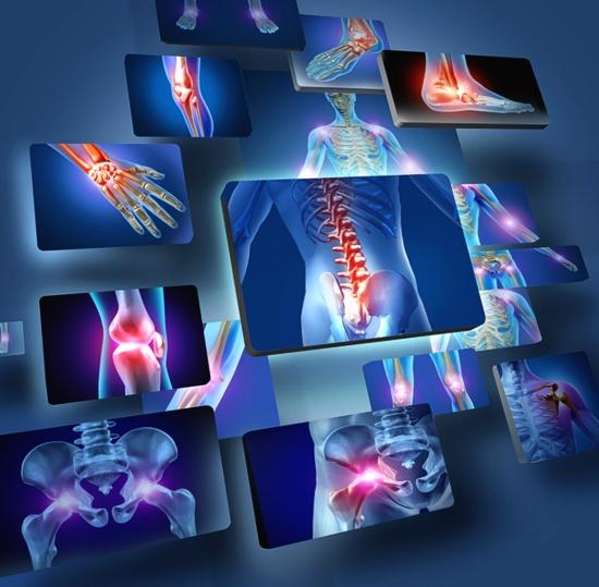 Symptome von Rheuma